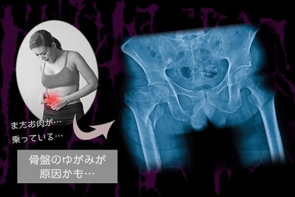 太る理由は骨盤の歪みが原因