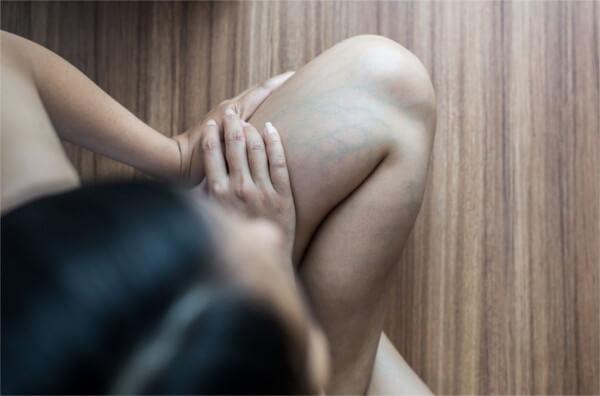 足のむくみ悪化による下肢静脈瘤