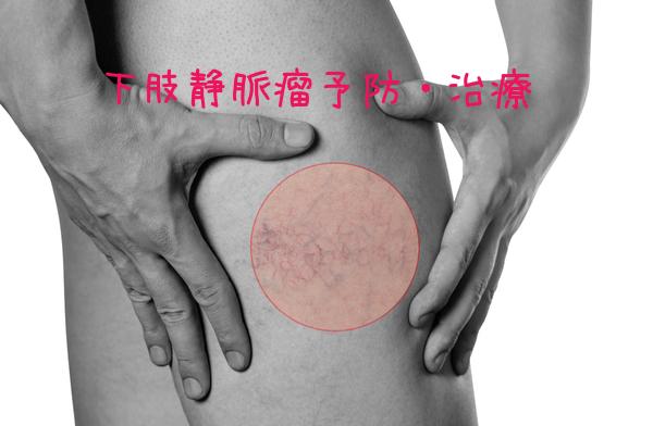 下肢静脈瘤予防治療